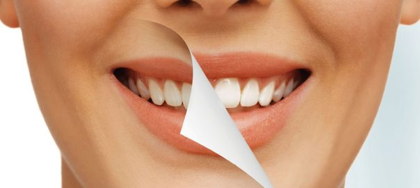 What You Should Know About The Different Types of Teeth Whitening